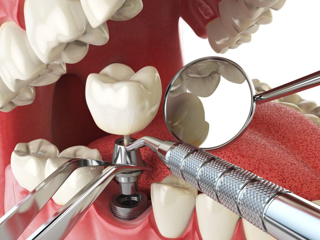 studio dentistico di Roma zona San Paolo DentistArt