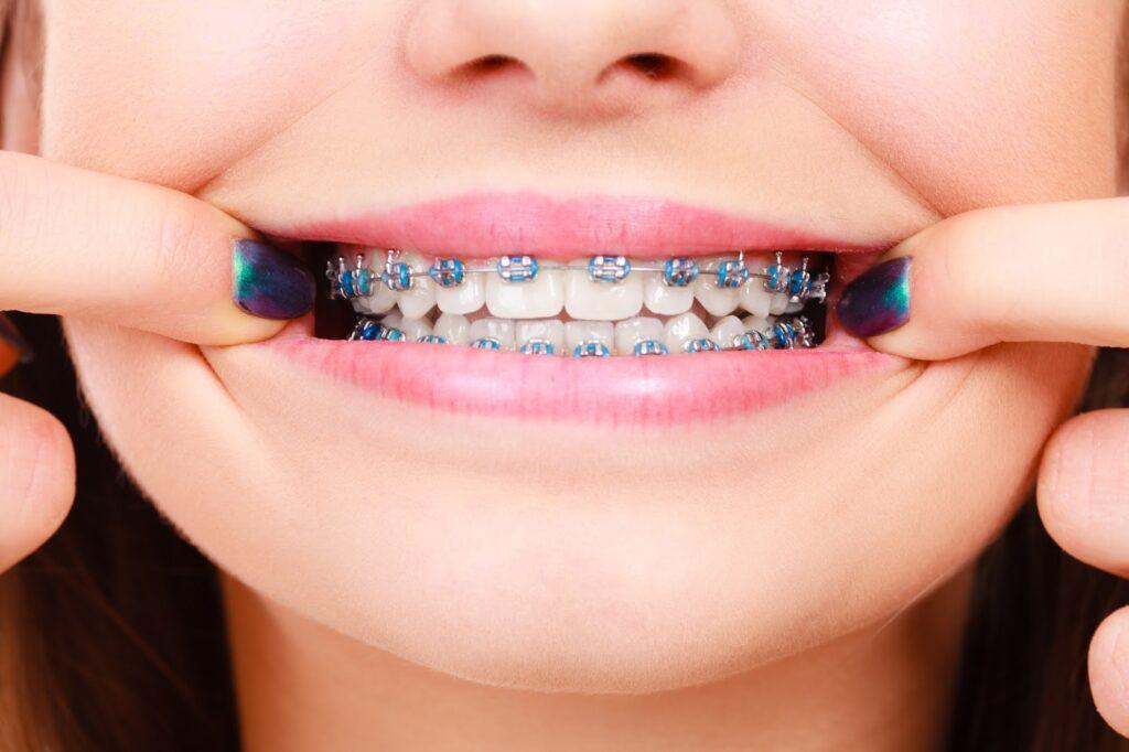 Studio Dentistico a Roma zona San Paolo - DentistArt