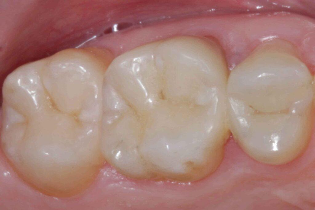 otturazioni dentali costi