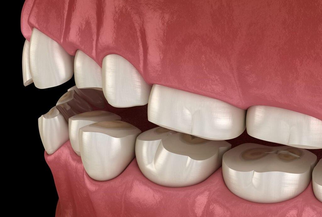 denti consumati ricostruzione