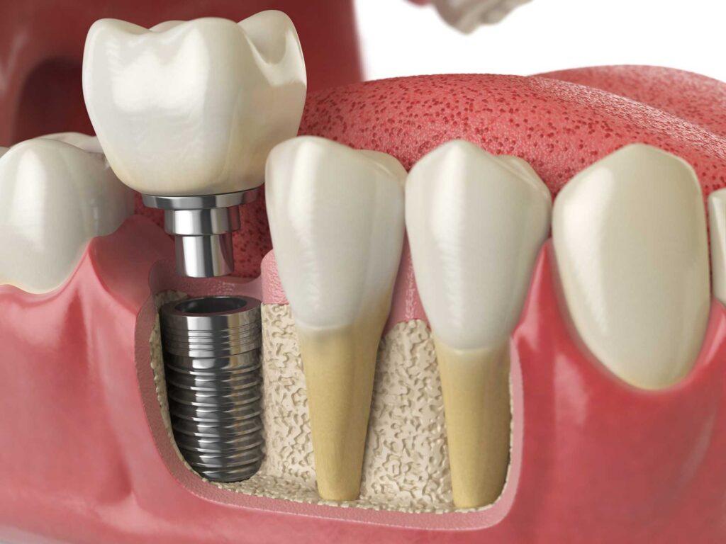 implantologia dentale Roma