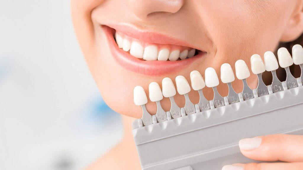 faccette dentali in composito