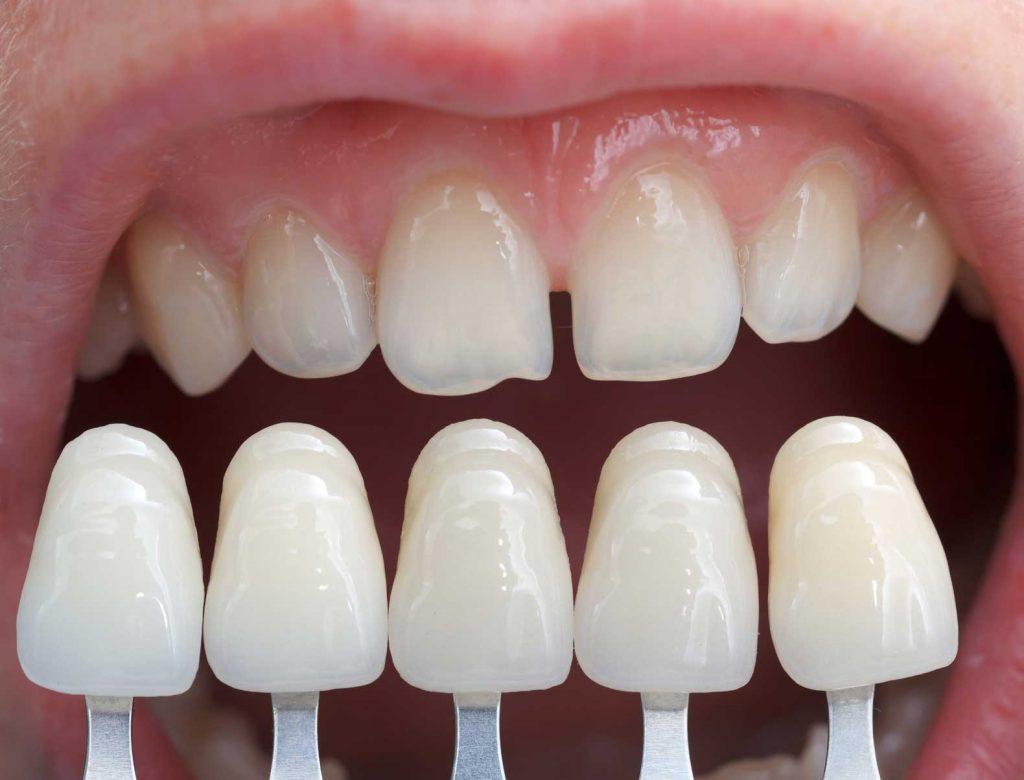 dentista estetico roma