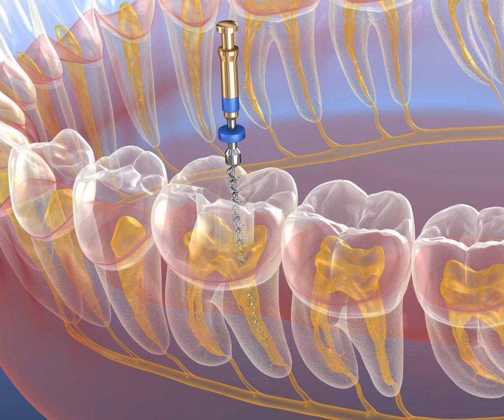 devitalizzazione dente 3 canali